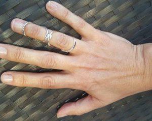 סד אצבע מכסף 925 לטיפול בגמישות יתר באצבעות
